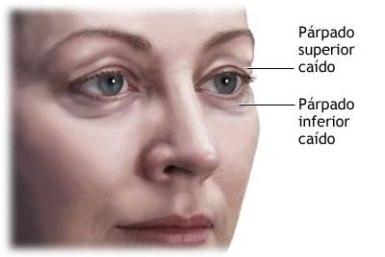 operacion-parpados-blefaroplastia[1]
