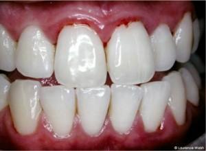 Swollen-Gum-Pictures-300x220[1]